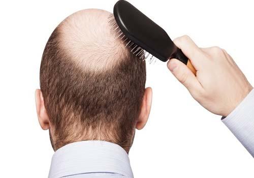 Bác sĩ chữa bệnh rụng tóc giỏi ở đâu tốt TPHCM