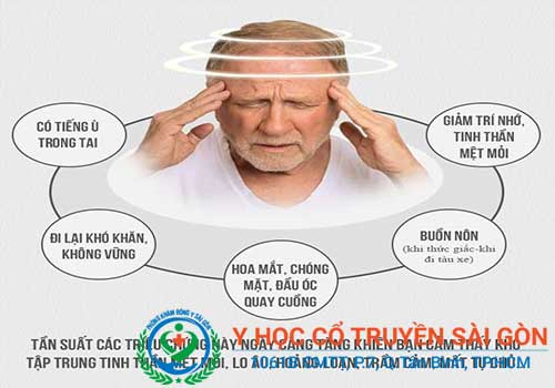 Rối loạn tiền đình nếu không chữa sớm rất dễ gây đột quỵ