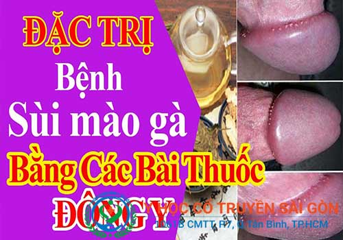 Bài thuốc chữa sùi mào gà giai đoạn đầu của YHCT Sài Gòn