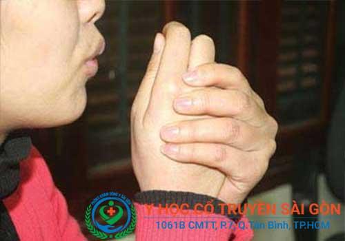 Bài Thuốc Đông y chữa bệnh chân tay lạnh tại YHCT Sài Gòn