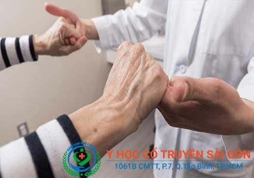 Bệnh teo cơ là gì triệu chứng dấu hiệu nguyên nhân