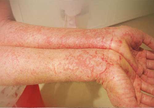 Bài thuốc nam chữa bệnh eczema hiệu nghiệm trong dân gian