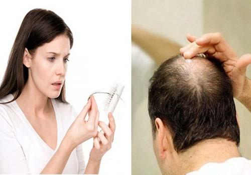 Nhà thuốc Đông y chữa rụng tóc