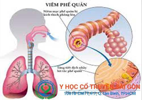 Bài thuốc nam chữa bệnh viêm phế quản hiệu quả trong dân gian