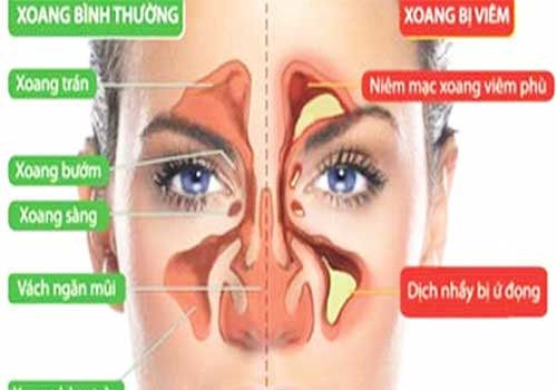 Bài thuốc Nam chữa bệnh viêm xoang mũi mãn tính trong dân gian