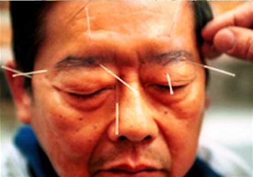 Kinh nghiệm và mẹo chữa viêm dây thần kinh trong dân gian