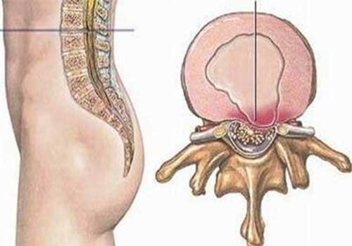 Đau thần kinh tọa có thể do thoát vị đĩa đệm