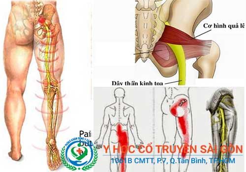 Viêm dây thần kinh ảnh hưởng đế nhiều cơ quan của cơ thể