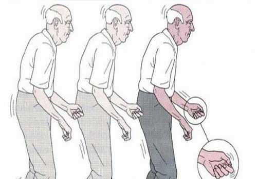 Bệnh Parkinson là gì? Triệu chứng nguyên nhân biểu hiện