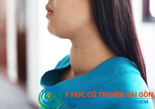 Bệnh bướu cổ có khả năng gây vô sinh nếu không được chữa trị sớm