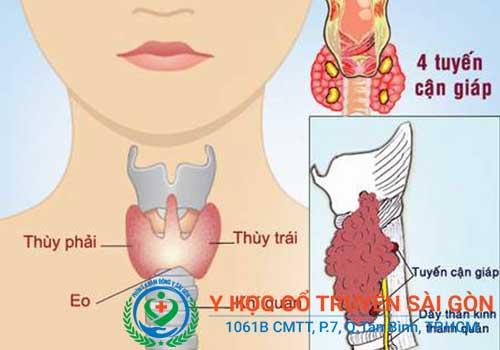 Bệnh bướu cổ là gì? Triệu chứng dấu hiệu nguyên nhân