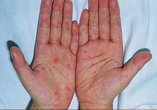 Bệnh chàm thường mọc ở lòng bàn tay...