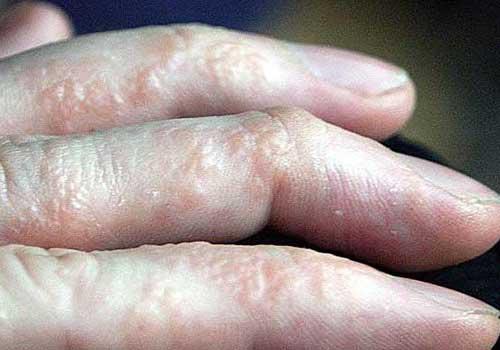 ... ngón tay, kẽ tay hoặc chân