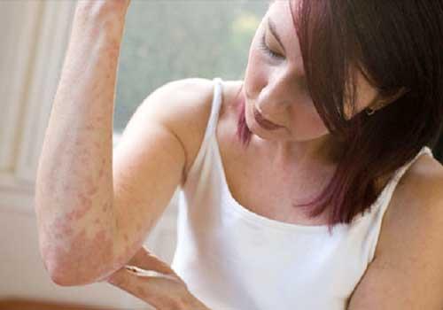 Tổng hợp hình ảnh bệnh viêm da cơ địa ở nam và nữ