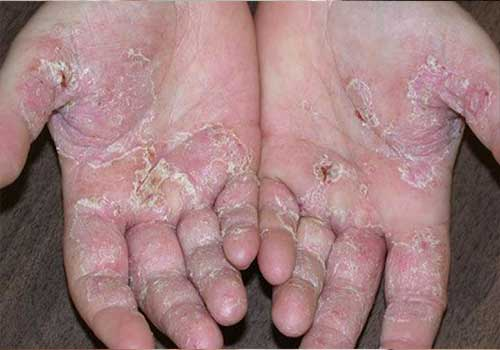 Biểu hiện của chàm rất đa dạng, có thể là mụn nước hoặc làm bong tróc, nứt da