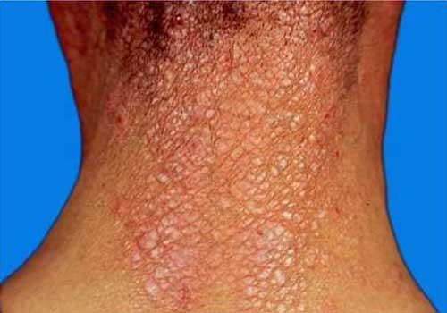 Chàm ở gáy và da đầu khi bị Liken hóa (hằn cổ trâu)