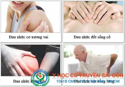Đau cơ có thể do mắc các bệnh về xương khớp
