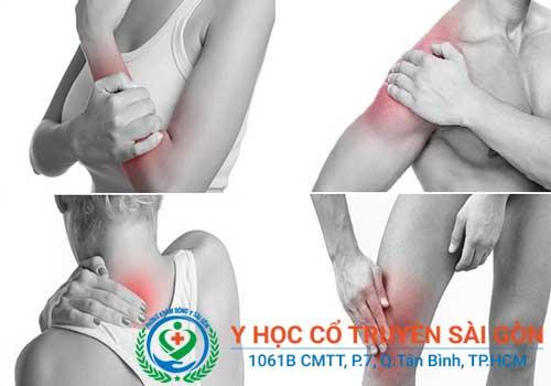 Bệnh đau cơ là gì? Triệu chứng dấu hiệu nguyên nhân