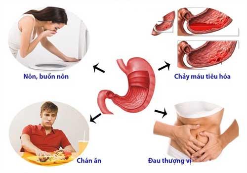 Bệnh đau dạ dày: nguyên nhân, triệu chứng và cách chữa bệnh 3