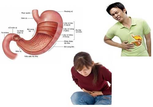 Bệnh đau dạ dày nguyên nhân, dấu hiệu, triệu chứng và cách chữa bệnh