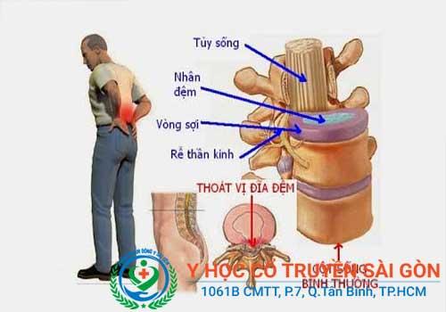 Đau lưng do các bệnh lý về cột sống