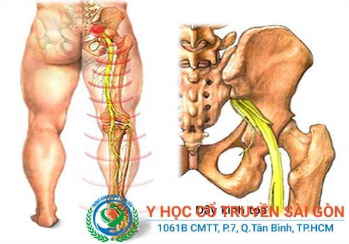 Đau lưng nếu không được điều trị sớm có thể gây nhiều biến chứng nguy hiểm