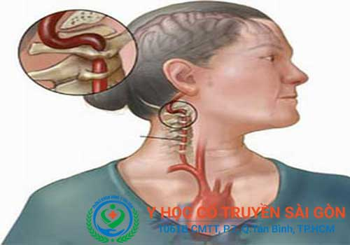 Có nhiều nguyên nhân dẫn đến bệnh đau nửa đầu vai gáy