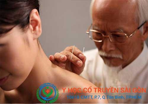 Châm cứu, bấm huyệt là một trong những liệu pháp chữa đau nửa đầu vai gáy rất hiệu quả