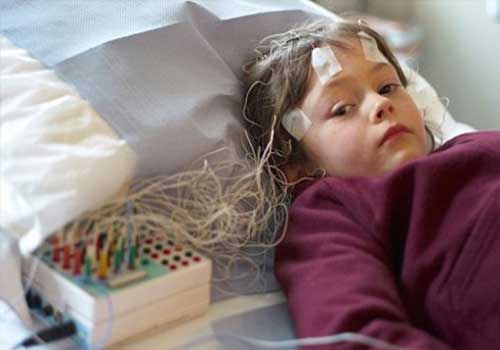 Bệnh động kinh ở người lớn và trẻ em có nguy hiểm không
