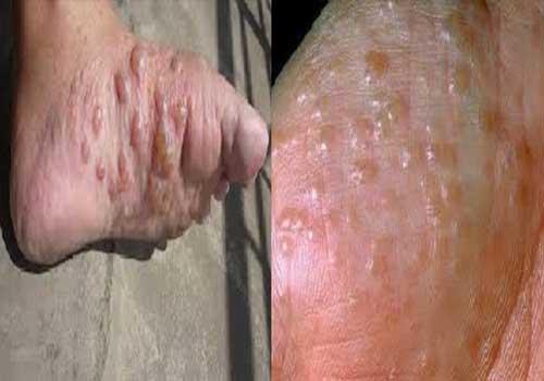 Bệnh eczema tổ đỉa là gì Triệu chứng nguyên nhân và cách chữa