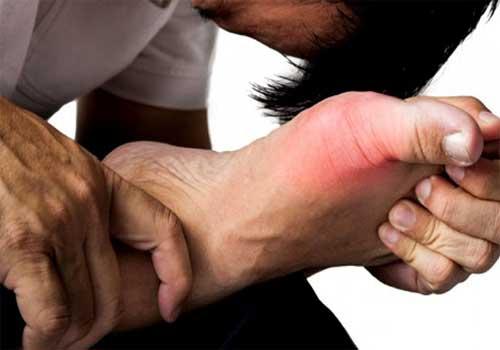 Bệnh gút có chữa khỏi được không?