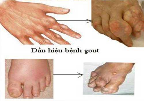 Bệnh gút (Gout) nên ăn gì và kiêng gì?