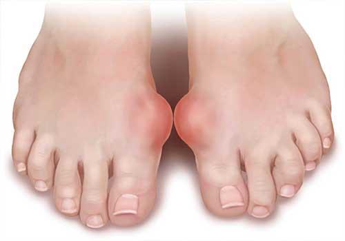 Người bị bệnh gút thường rất đau ở các khớp ngón chân, ngón tay