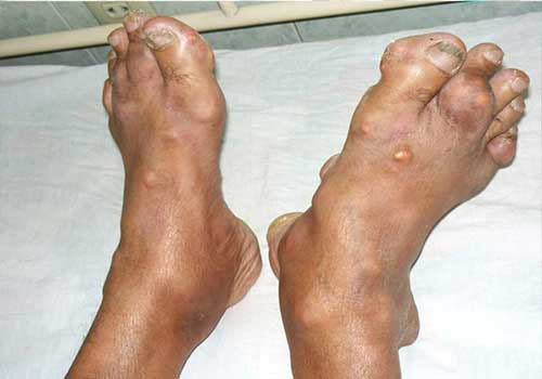 Bệnh gút nếu không được điều trị sớm sẽ gây nhiều biến chứng nguy hiểm