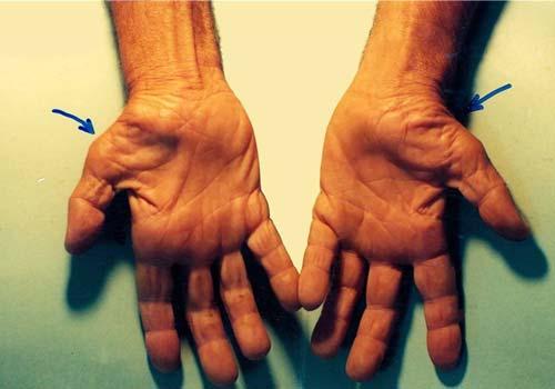 Bệnh Hội chứng ống cổ tay là gì? Triệu chứng biểu hiện nguyên nhân