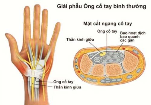 bài tập chữa hội chứng ống cổ tay