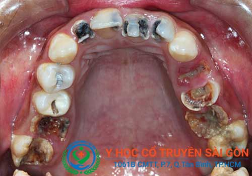 Sâu răng là một trong những nguyên nhân gây hôi miệng