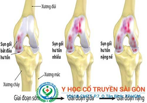 Bệnh khô khớp xương gây nhiều biến chứng nguy hiểm nếu không chữa trị kịp thời