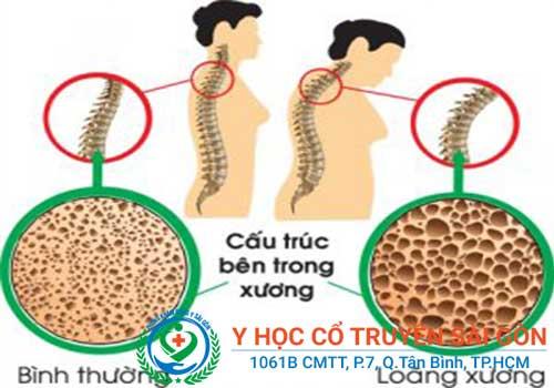 Bệnh loãng xương là gì? Triệu chứng nguyên nhân và dấu hiệu nhận biết