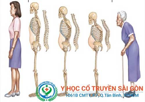 Bệnh loãng xương thường gặp ở người cao tuổi với các dấu hiệu điển hình