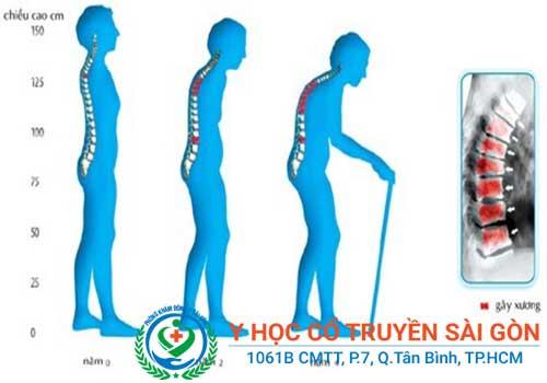 Dấu hiệu nhận biết bệnh loãng xương là đau nhức, gù lưng