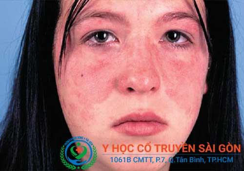 Bệnh Lupus ban đỏ là một dạng bệnh tự miễn