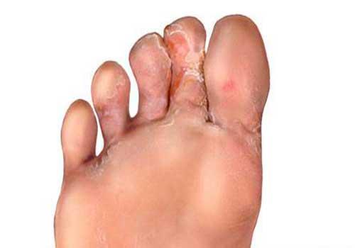 Nấm kẽ chân thường gặp nhiều ở mua mưa