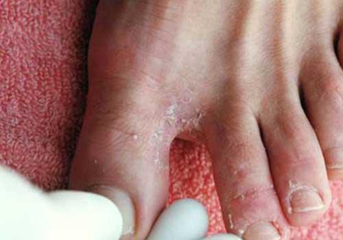 Nấm kẽ chân gây ngứa ngáy, khó chịu cho người bệnh