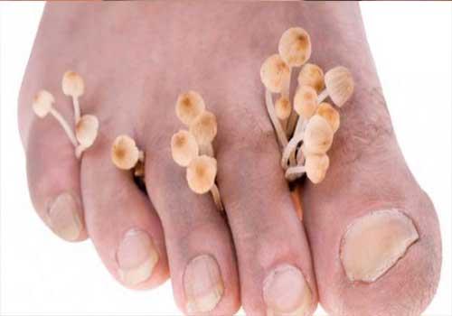 Bệnh nấm kẽ chân là gì triệu chứng cách chữa và cách phòng tránh