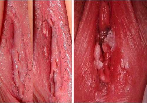 Dấu hiệu biểu hiện bệnh sùi mào gà ở nữ giới