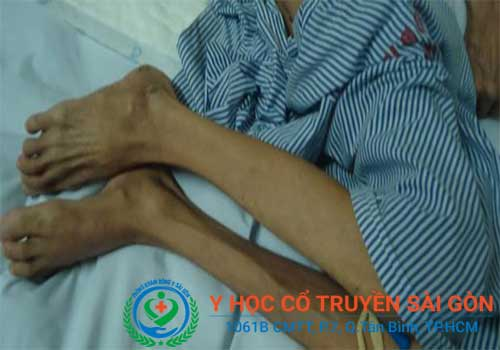 Bác sĩ chữa bệnh teo cơ toàn thân giỏi ở TPHCM
