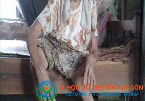 Bệnh teo cơ tay và chân ở người lớn tuổi có nguy hiểm không?