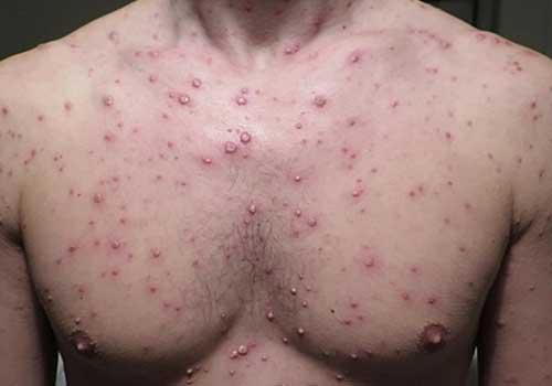 Tổng hợp hình ảnh bệnh thủy đậu ở nam và nữ