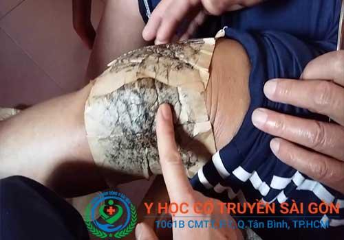 Chữa bệnh tràn dịch khớp gối bằng các phương pháp YHCT mang lại hiệu quả cao và an toàn